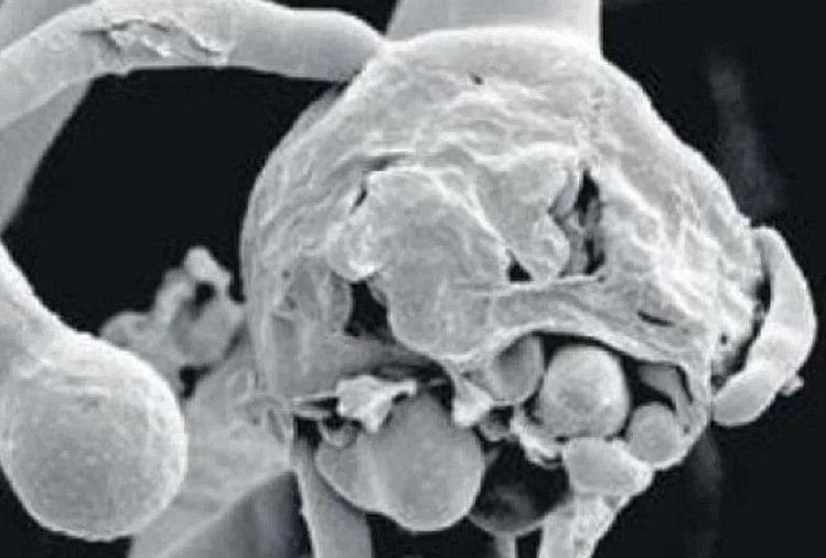 New crisis: White fungus is more dangerous than black fungus amid epidemic