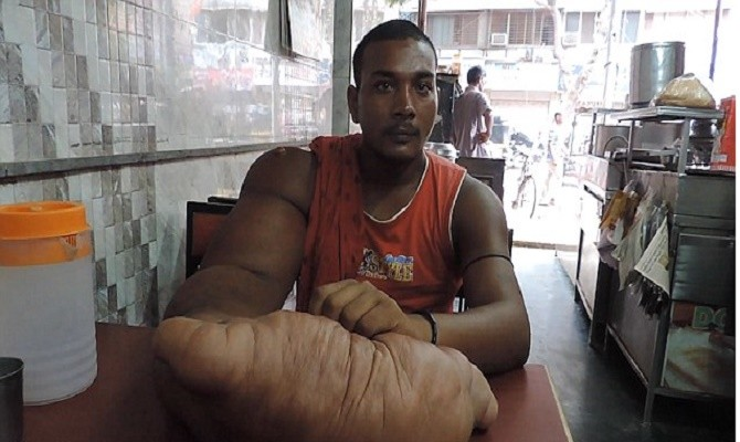 Indian man with huge 20kg arm is forced to flee his home.