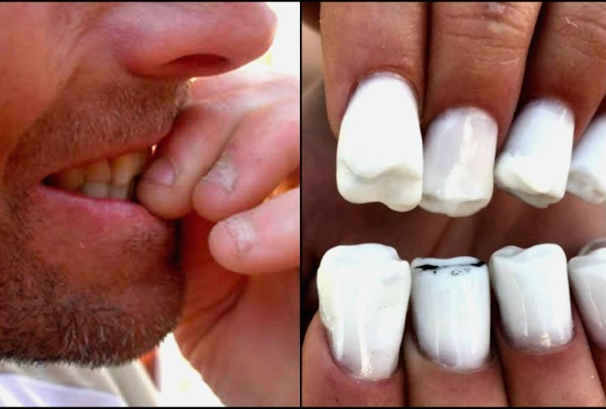 Hilarious tooth nail art you never seen before