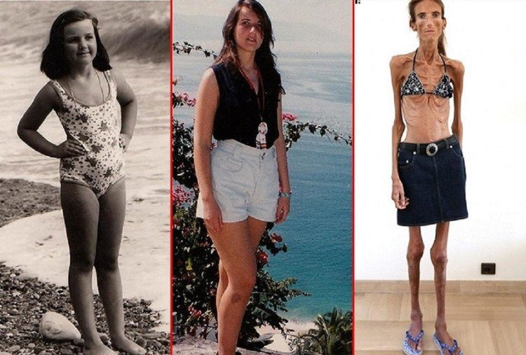 World's thinnest woman Valeria Levitin warns against anorexia disease