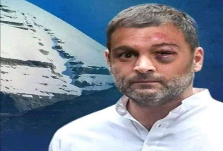 Rahul Gandhi beaten up Fake Pic Viral on Social Media