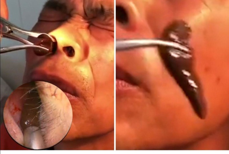Doctors Find 2 Leeches Chinese Man Inside His Nostril And Throat
