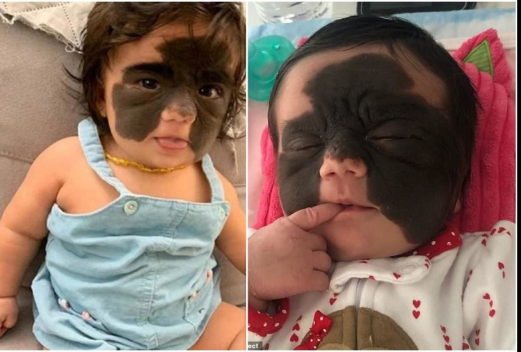 a girl born with batman mask doctor reveal shocking truth
