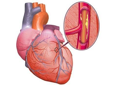 Image result for कोलेस्ट्रोल