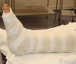 now fracture will improve speedily